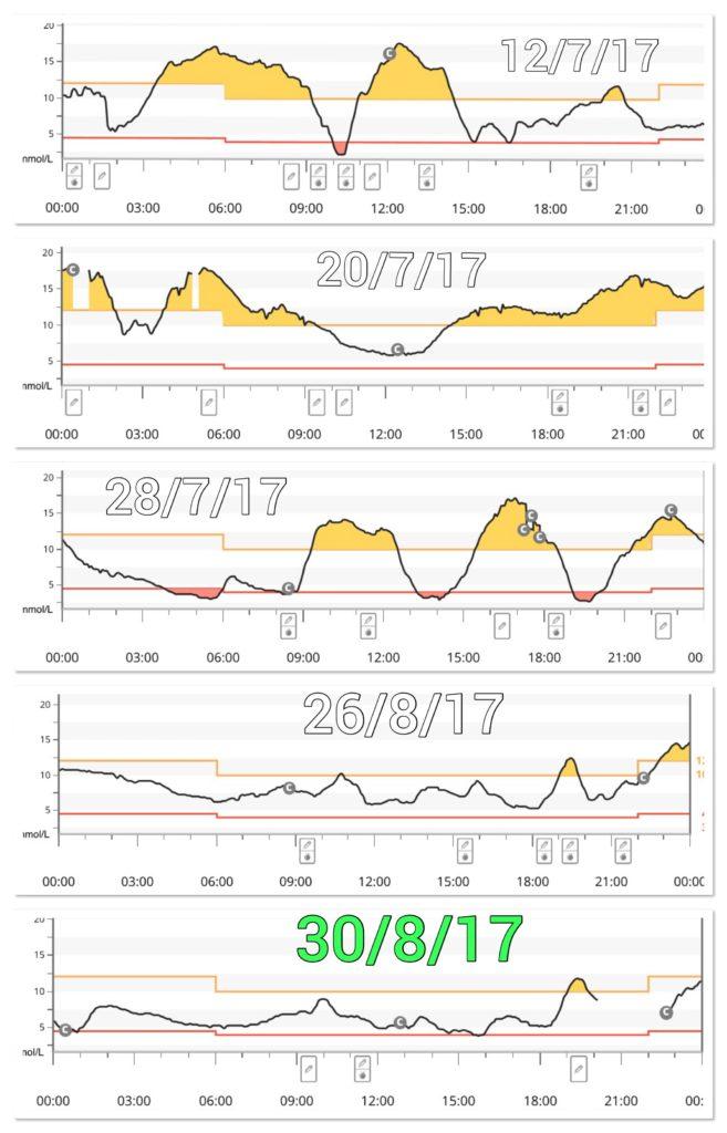 Dexcom G5 Graph