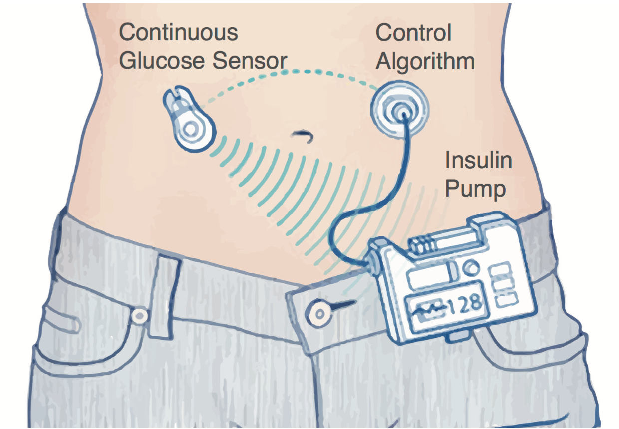 Study Insulin Pump Better Than Injections